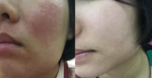 面部过敏性皮炎