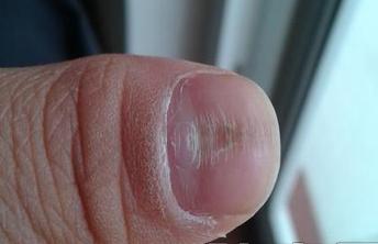 指甲凹陷小心牛皮癣(银屑病)