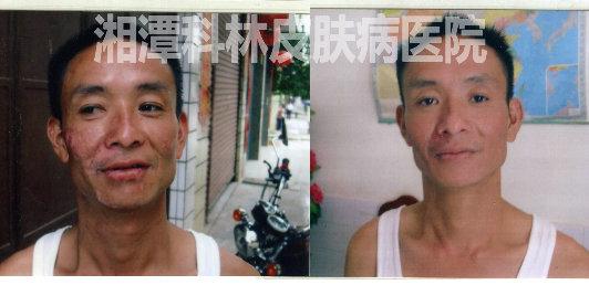 李先生在湘潭科林皮肤病医院治疗白癜风