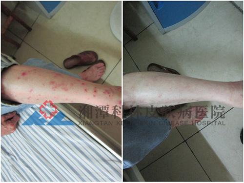 腿部湿疹康复案例