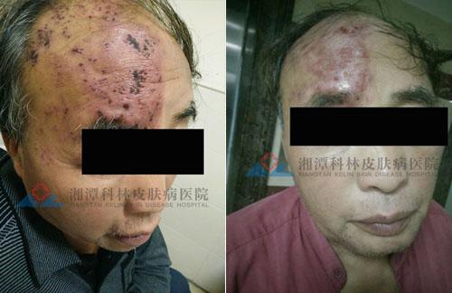 我院治疗面部带状疱疹案例图