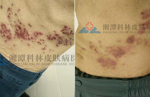我院治疗腰部带状疱疹一周案例
