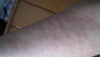 手部荨麻疹