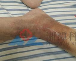 腿部湿疹症状